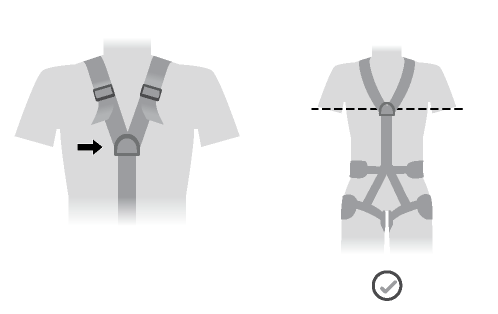 The sternal attachment point should be placed at chest level.