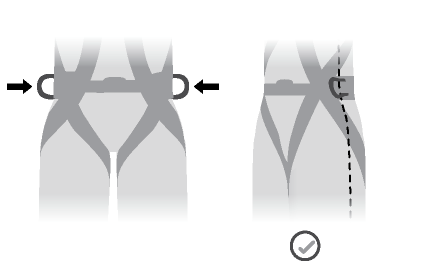 The side attachment points should be located at the level of the iliac crest.